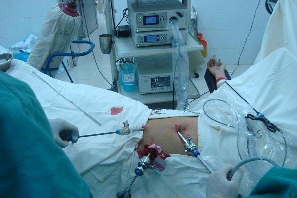 Bệnh nhân HIV có được mổ nội soi cắt ruột thừa được không?