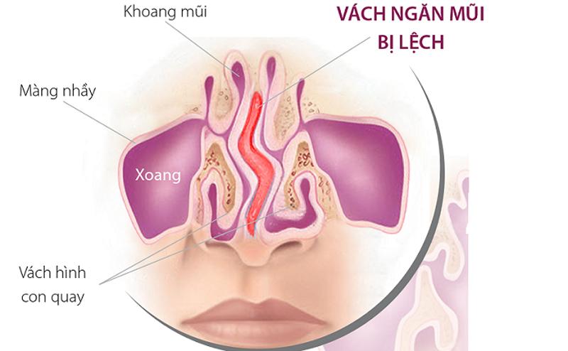 Cách điều trị lệch phần cánh mũi kèm viêm xoang mũi gây khó thở?
