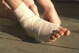 Sau 25 ngày nối gân chân và cố định gãy ngón chân có thể đi lại nhẹ nhàng được không?