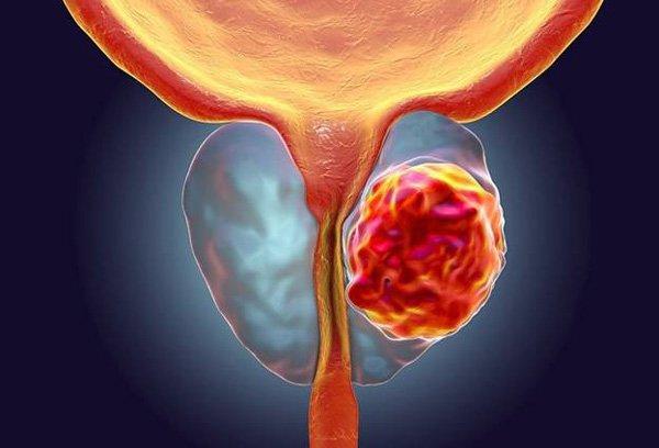 Ung thư tiền liệt tuyến ở người cao tuổi