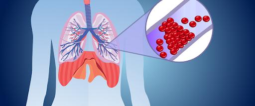 Thuyên tắc động mạch phổi