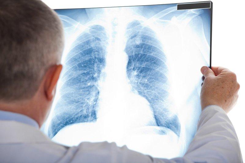 X-quang lồng ngực