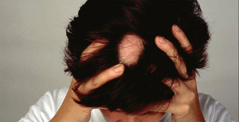 Tóc rụng 1 lỗ như đồng xu làm cách nào để tóc mọc lại?