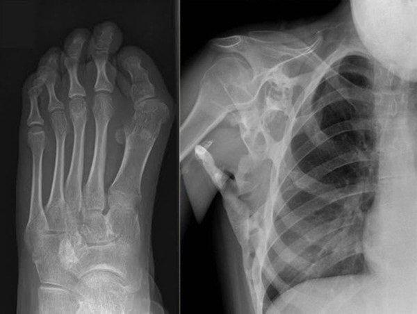 Chụp x quang phát hiện ung thư xương không