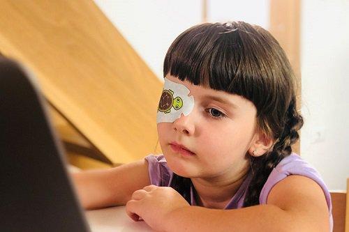 Trẻ 5 tuổi bị nhược thị có tự bổ sung thuốc nhỏ mắt Sancoba được không?