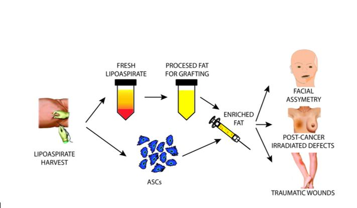 tế bào gốc mô mỡ