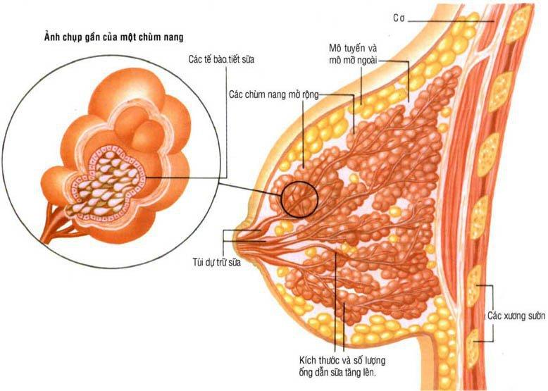 Bệnh nang tuyến vú có thể điều trị được không?