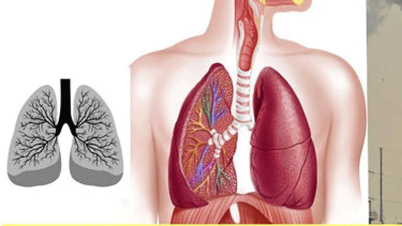Tổn thương xơ sau điều trị lao phổi có phải xơ phổi không?