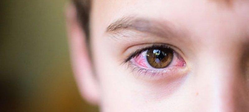Trẻ 7 tuổi bị ngứa đỏ mắt kèm ra ghèn xanh có phải viêm kết mạc dị ứng không?