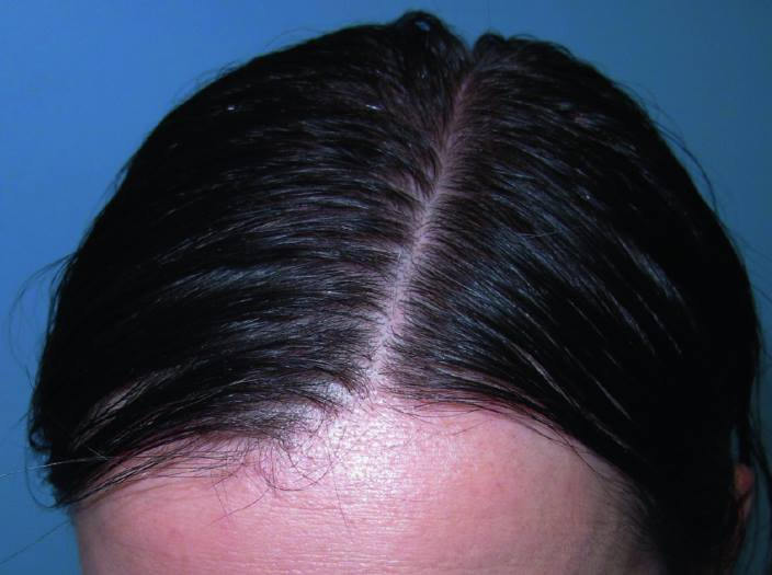 Rụng tóc Telogen (telogen effluvium) là gì?