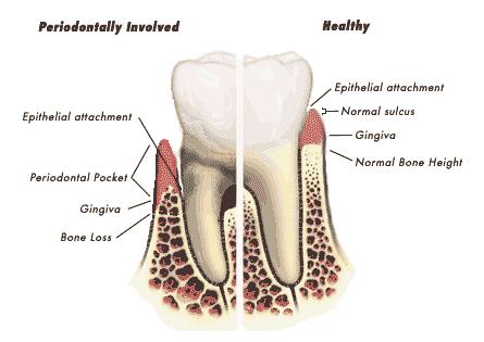 nạo túi quanh răng