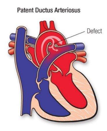 thắt ống động mạch