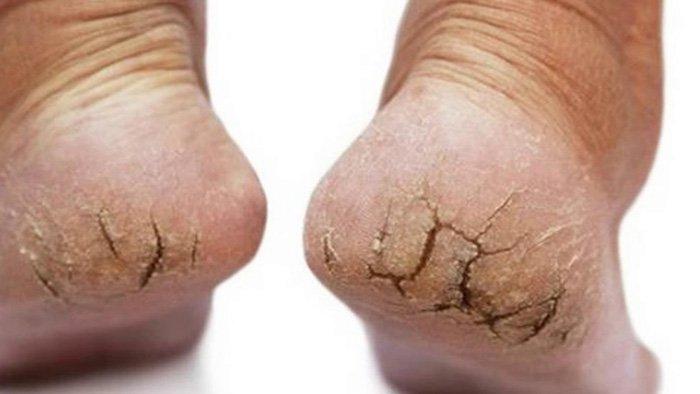 chữa nứt gót chân nhanh nhất
