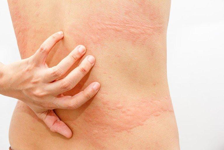 Buồn ngủ thường xuyên, mệt mỏi kèm dị ứng da ngứa là dấu hiệu bệnh gì?