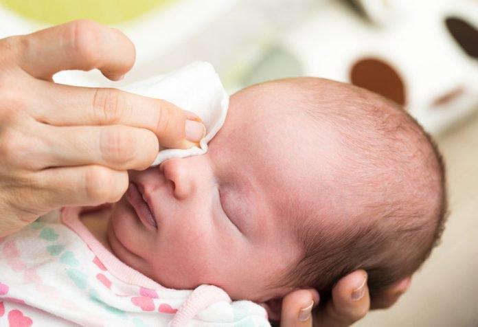 Trẻ 3 tháng tuổi bị tắc tuyến lệ khi nào có chỉ định thông tuyến lệ?