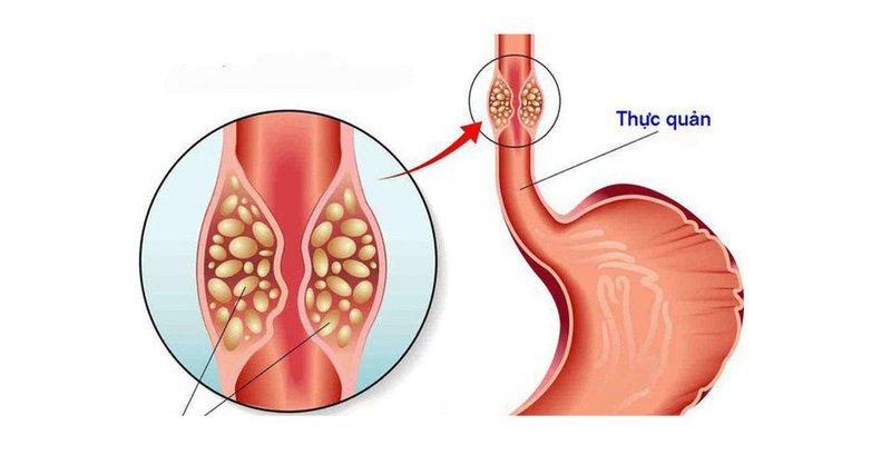 Nguyên nhân và cách điều trị bệnh u niêm dưới thực quản?