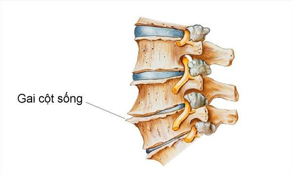 Gai xương đốt xương lưng có gây đau đầu không?