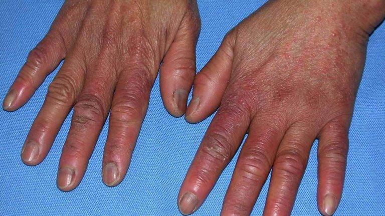 Điều trị viêm mô tế bào mủ bàn tay không giảm phải làm sao?