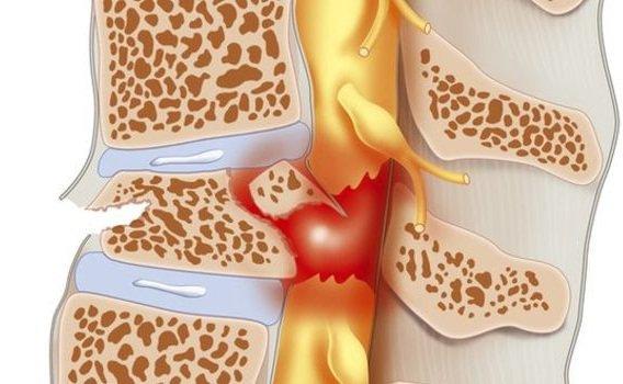 Viêm tủy sống C4-T6 có thể điều trị phục hồi đi lại nhanh được không?