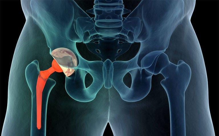 Xương cal sau 2 tháng gãy cổ xương đùi có nguy cơ bị hoại tử không?