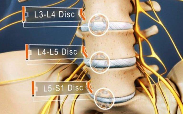 Teo cơ, khớp gối không trụ được sau phẫu thuật u rễ thần kinh L4, L5 phải làm gì?
