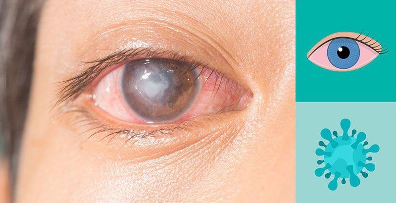 Mắt trẻ bình thường sau 30 ngày điều trị loét giác mạc có cần tái khám nữa không?