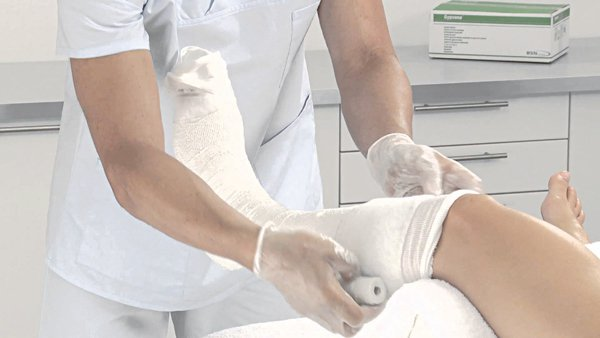 Gãy xương ống chân lại sau 1 năm nên dùng thuốc gì?
