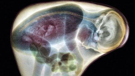 chụp MRI thai nhi