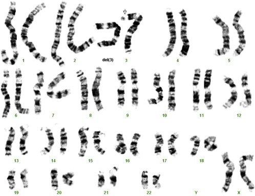 nhiễm sắc thể số 3