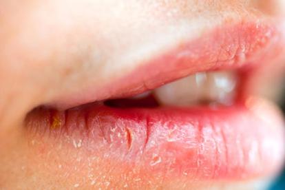 7 lời khuyên của bác sĩ da liễu để chữa lành đôi môi khô nứt nẻ