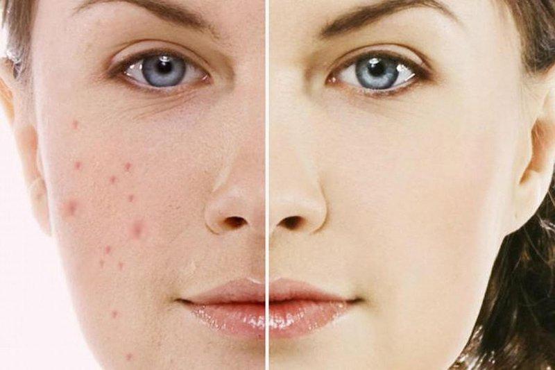 trị tăng sắc tố da