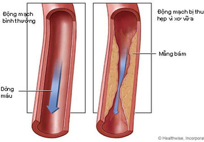 bảo vệ thành mạch máu
