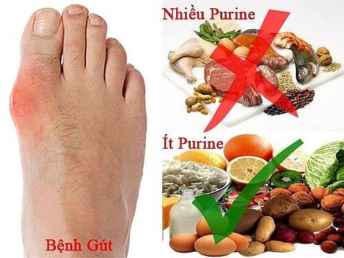Bệnh gút: Cần hạn chế ăn các thực phẩm có nhiều nhân purin