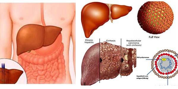 Viêm gan tối cấp: Triệu chứng, nguyên nhân, chẩn đoán