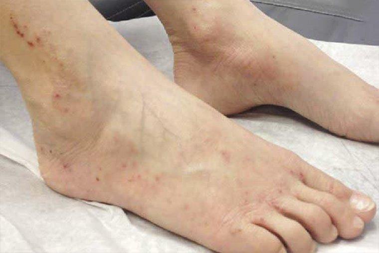 Viêm da cổ chân: Các triệu chứng, cách điều trị