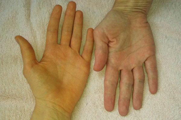 Vàng da bàn tay, bàn chân vào mùa đông là dấu hiệu bệnh gì?