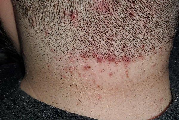Mụn ở gáy có mủ gây đau là bệnh gì?
