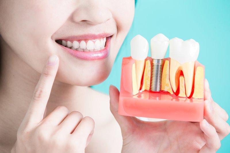 Gắn răng implant có khắc phục được tình trạng má bị hóp không?