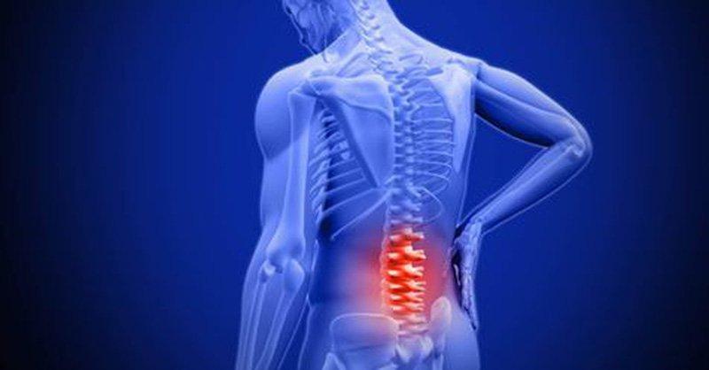 Điều trị viêm cột sống dính khớp như nào?