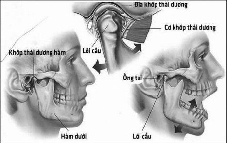 Rối loạn khớp thái dương hàm