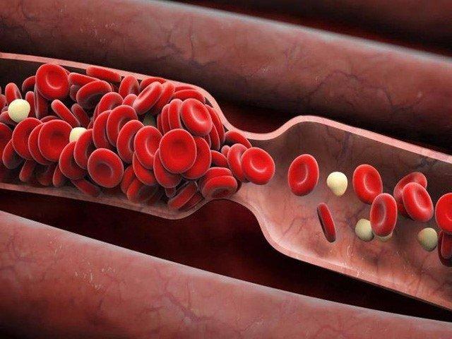 Làm sạch mạch máu