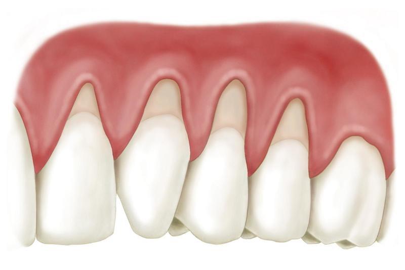 bị hở lợi chân răng