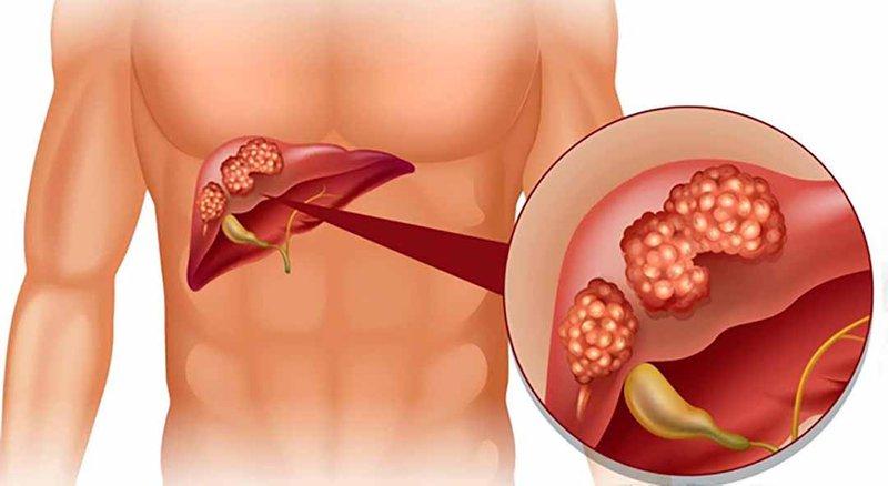 Điều trị viêm gan mạn tính như nào?