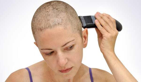 rụng tóc do hóa trị
