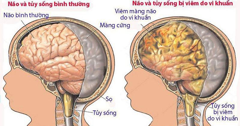 lao màng não có chữa được không