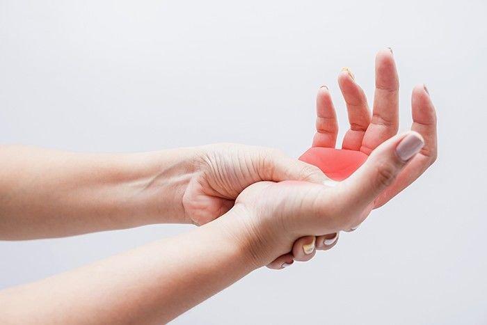 Lòng bàn tay sưng