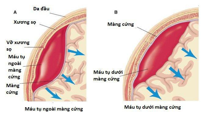 Co cơ chân tay sau tụ máu não ngoài màng cứng là do đâu?