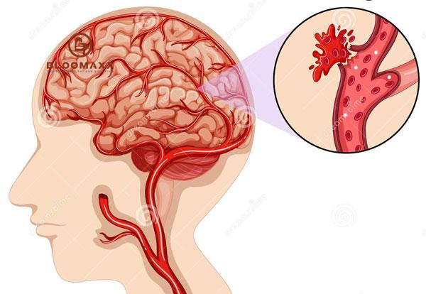 Mất khứu giác sau khi điều trị vỡ mạch máu não thùy trái