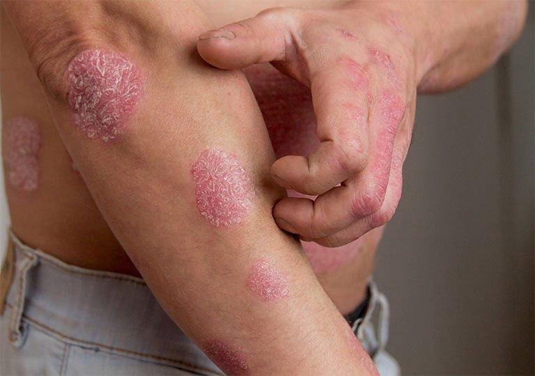 Thuốc Temovate điều trị một số các vấn đề gặp ở da, như là bệnh chàm, vẩy nến, viêm da, dị ứng, nổi mẩn