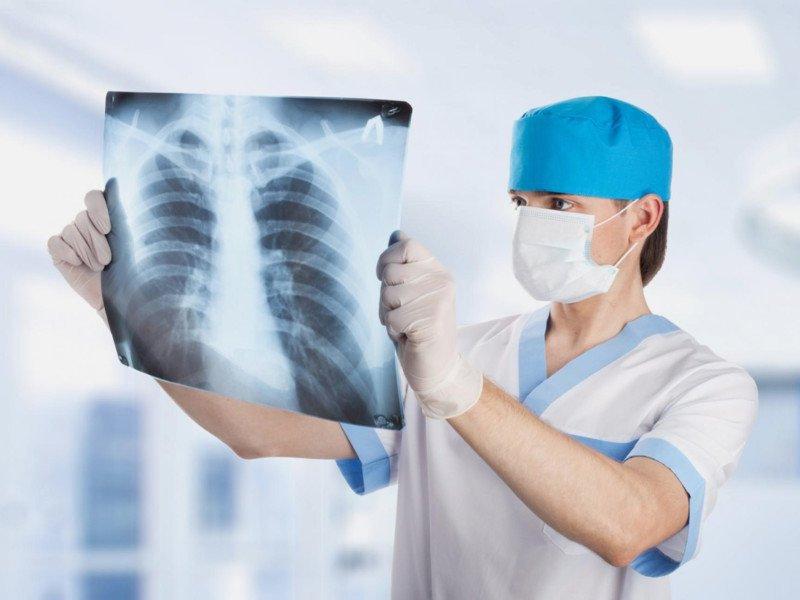 Bị nghi ngờ ung thư phổi hoặc lao phổi thì phải làm sao?